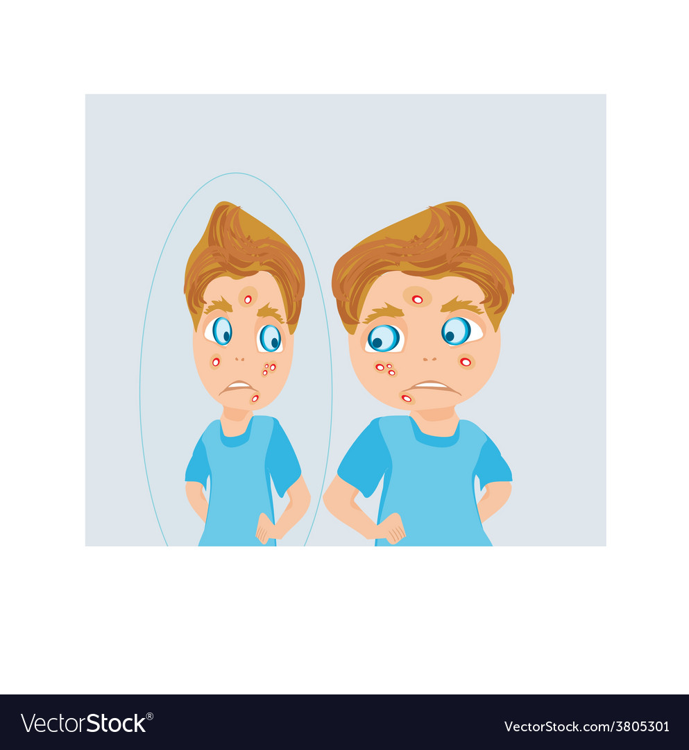 Boy in puberty with acne vector | Price: 1 Credit (USD $1)