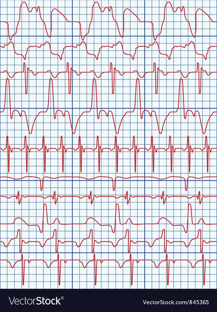 Cardiogram vector   Price: 1 Credit (USD $1)