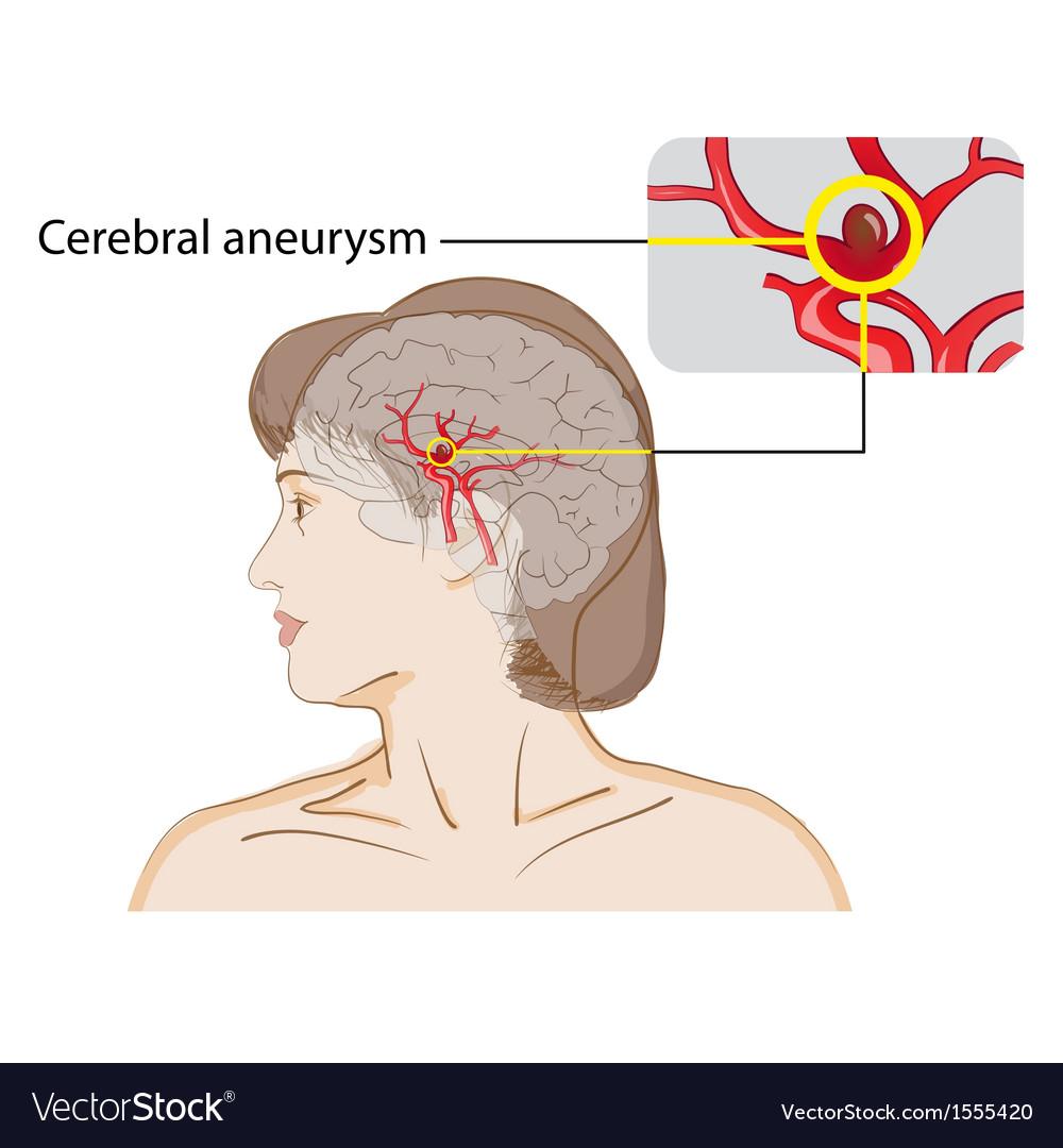 Cerebral aneurysm vector | Price: 1 Credit (USD $1)