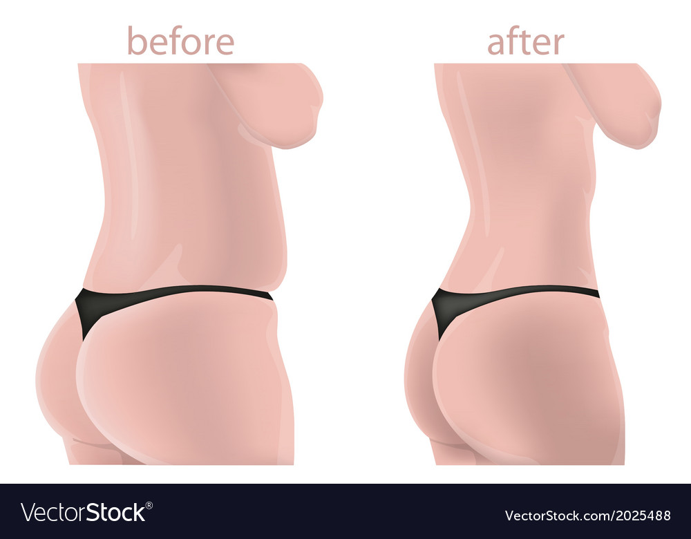 Weightloss image vector | Price: 1 Credit (USD $1)