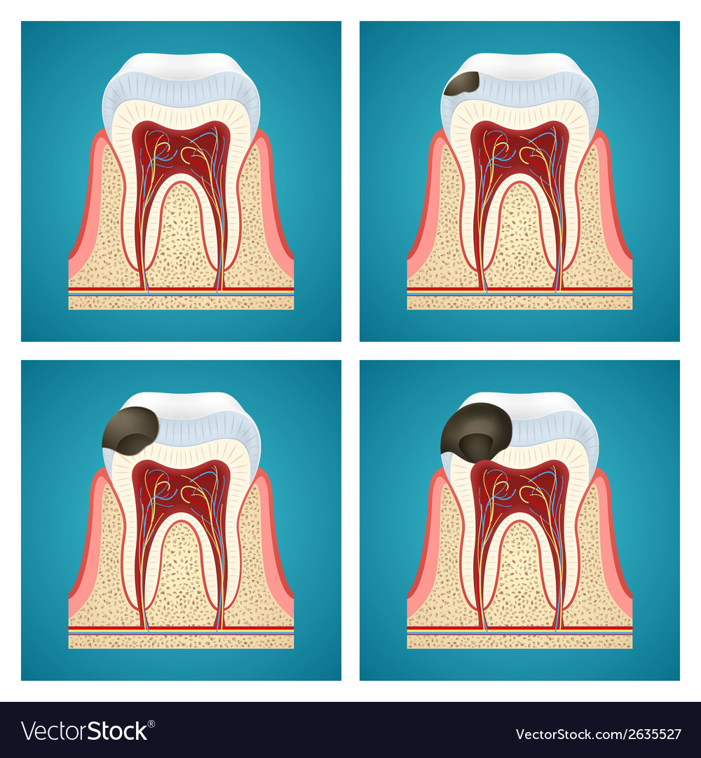 Stages progress caries on human teeth vector | Price: 1 Credit (USD $1)