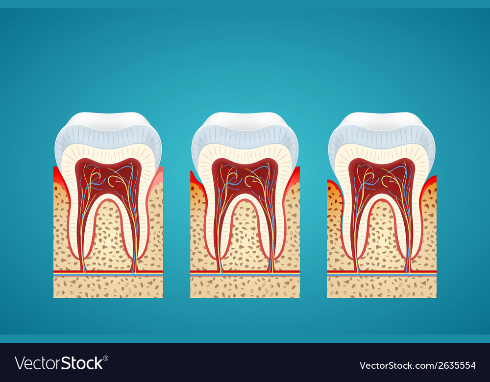Three human tooth in cutaway with gum disease vector | Price: 1 Credit (USD $1)