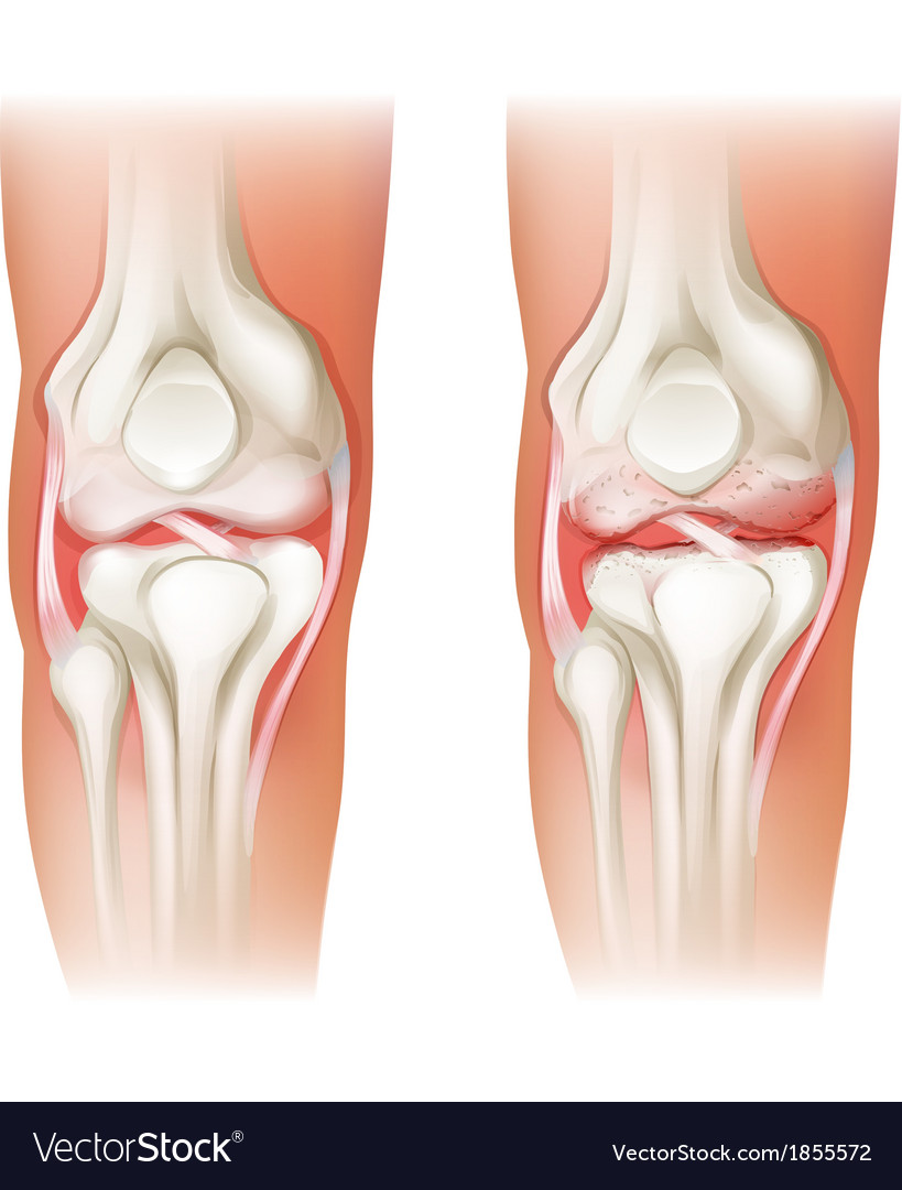 Human knee arthritis vector | Price: 1 Credit (USD $1)