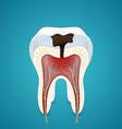 Teeth caries in cutaway vector
