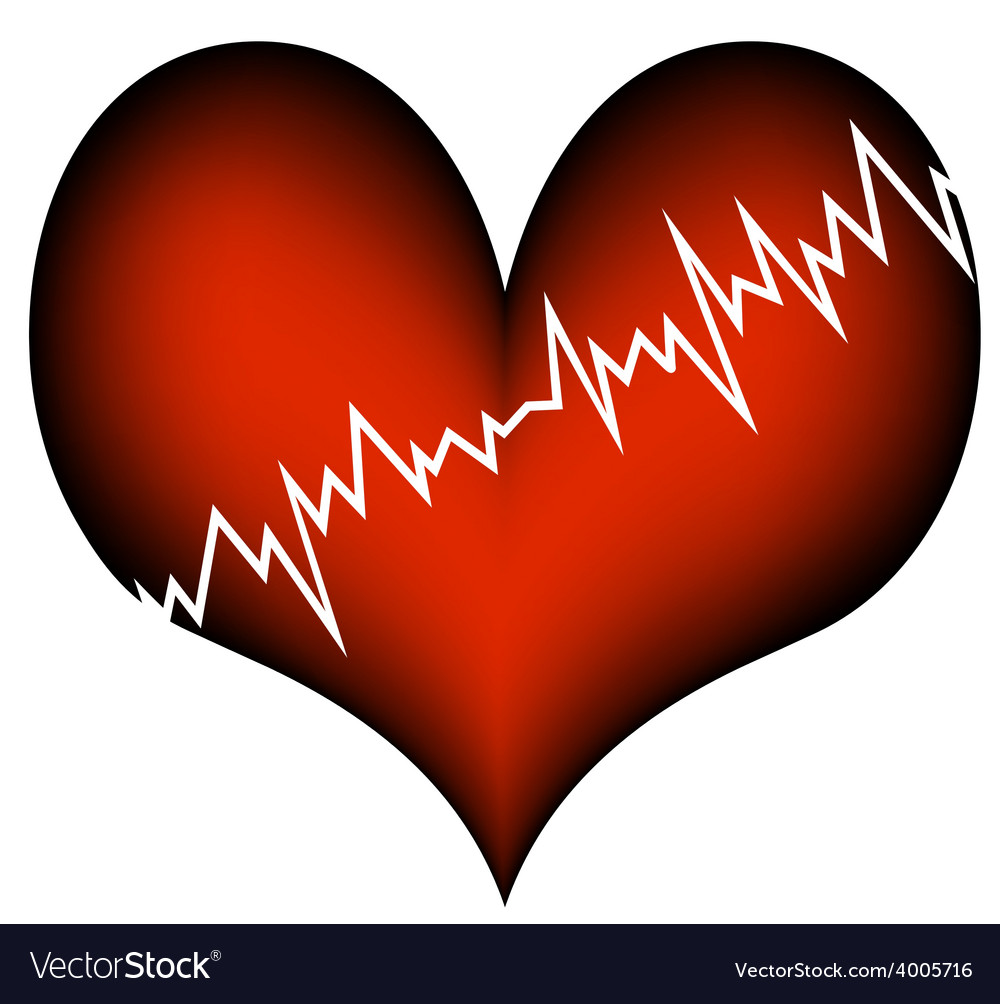 Cardiac infarction vector | Price: 1 Credit (USD $1)