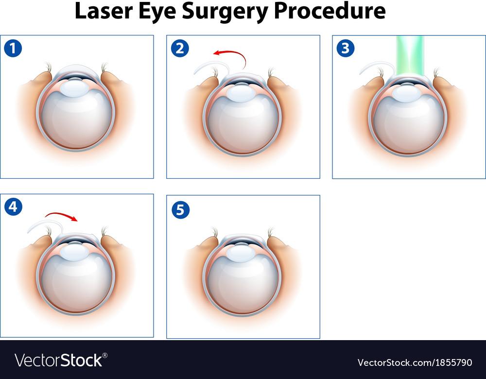Laser eye surgery procedure vector | Price: 1 Credit (USD $1)