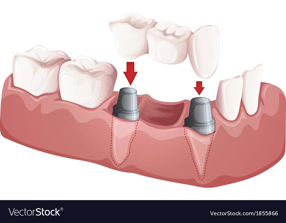 Dental bridge vector
