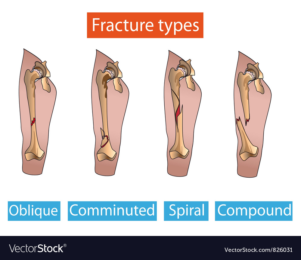 Types of fractures vector | Price: 1 Credit (USD $1)