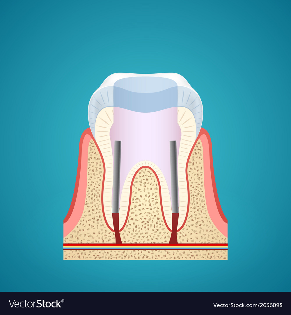 Healthy human tooth in cutaway vector | Price: 1 Credit (USD $1)