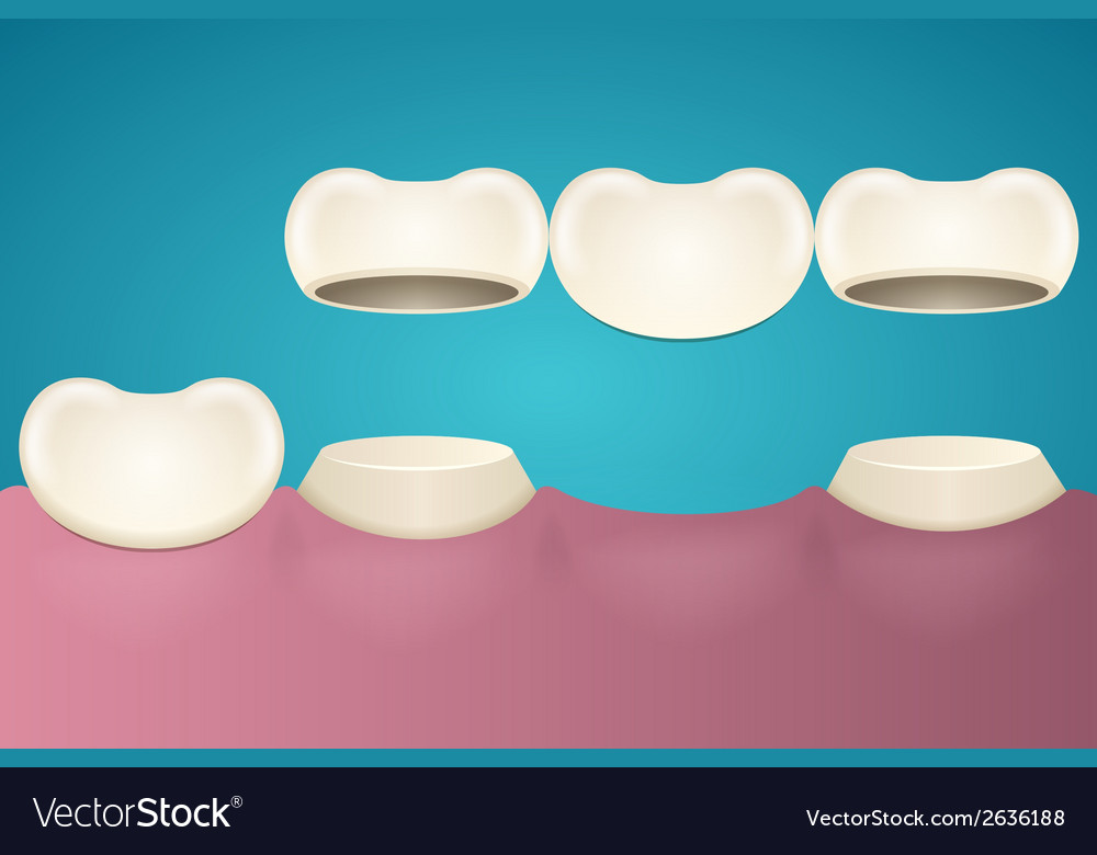 Tooth enamel vector | Price: 1 Credit (USD $1)