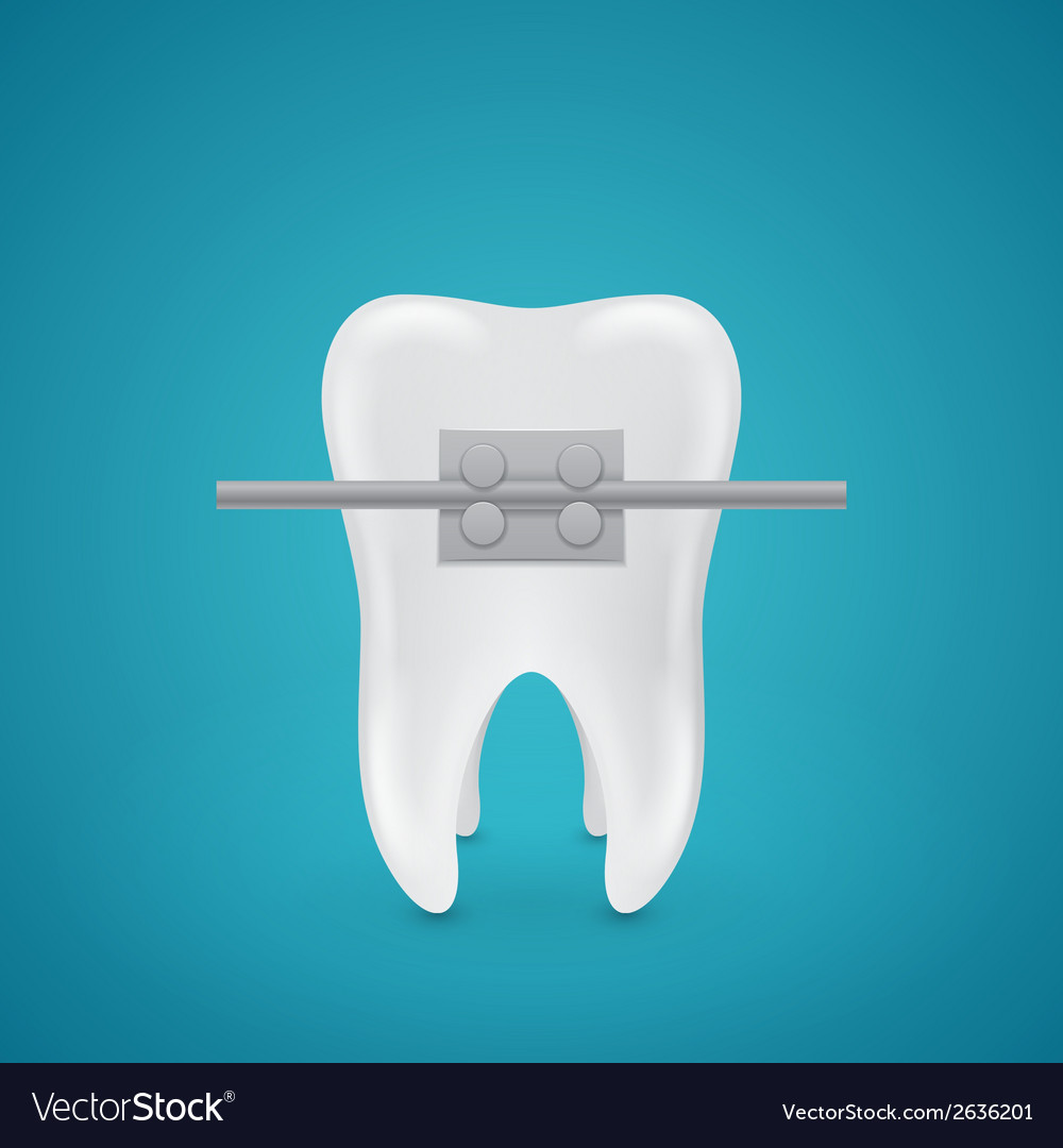 Tooth with staples vector | Price: 1 Credit (USD $1)