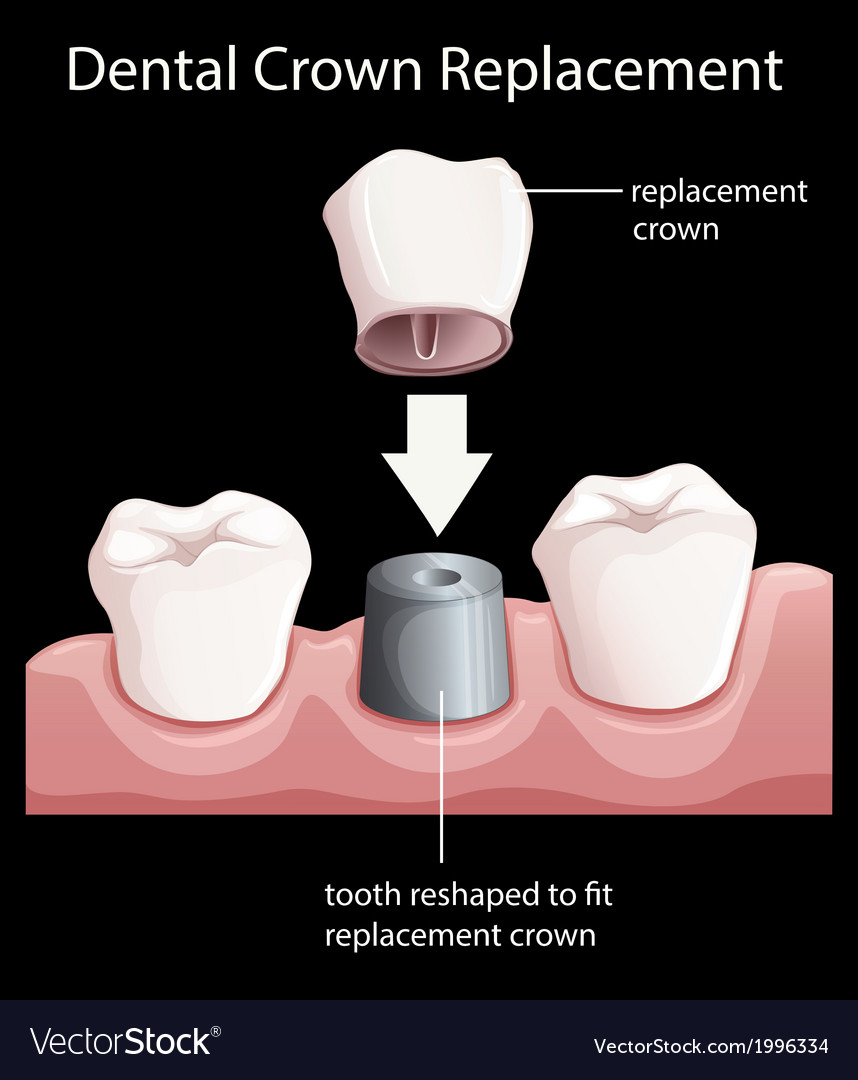 A dental crown replacement vector | Price: 1 Credit (USD $1)