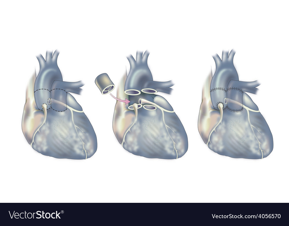 Heart surgery valve replacement vector | Price: 3 Credit (USD $3)