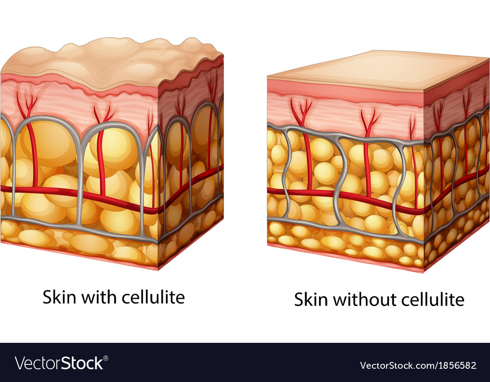 Cellulite vector | Price: 1 Credit (USD $1)
