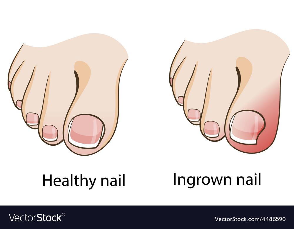 Ingrown nail vector   Price: 1 Credit (USD $1)