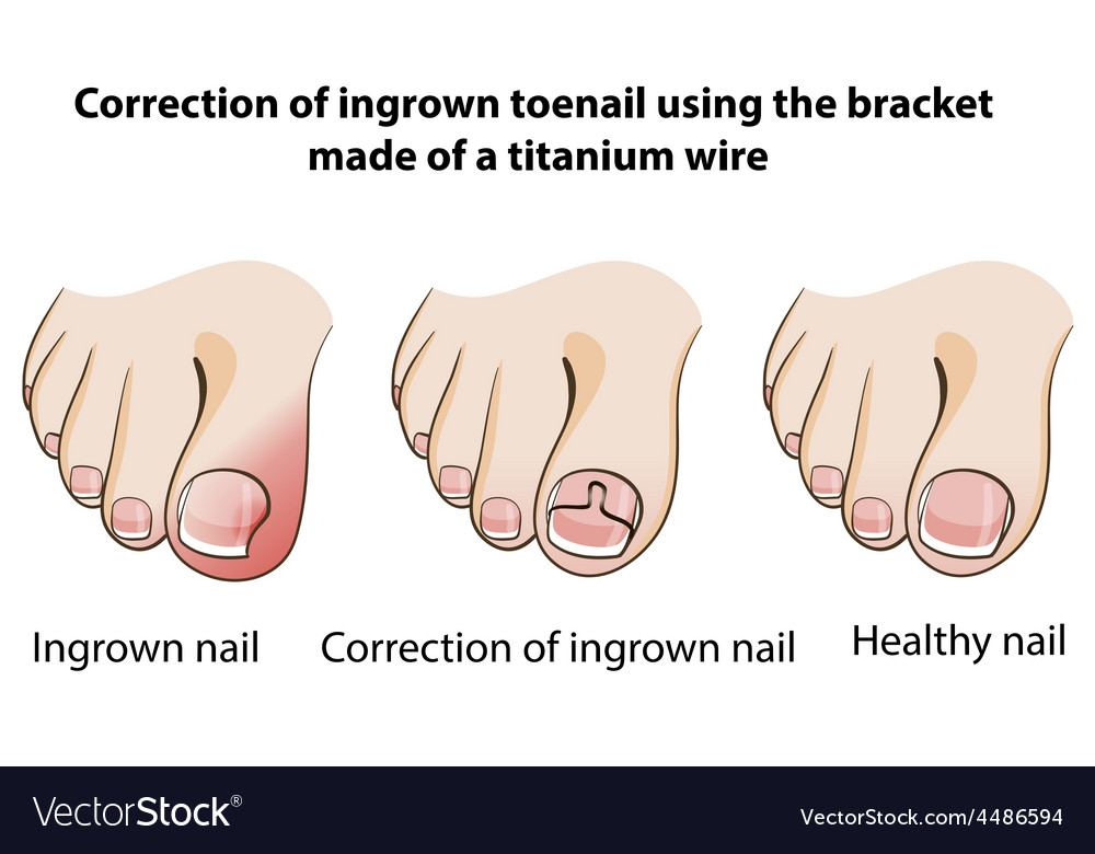 Correction of ingrown nail vector | Price: 1 Credit (USD $1)