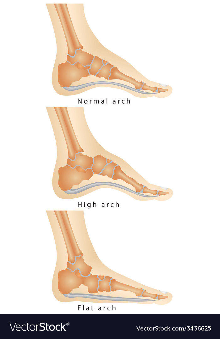 Arch of foot vector | Price: 1 Credit (USD $1)