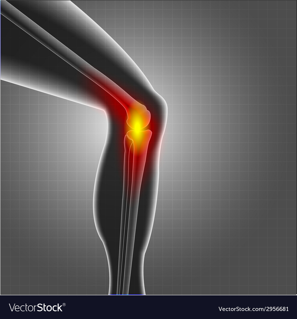 Kneee pain vector | Price: 1 Credit (USD $1)