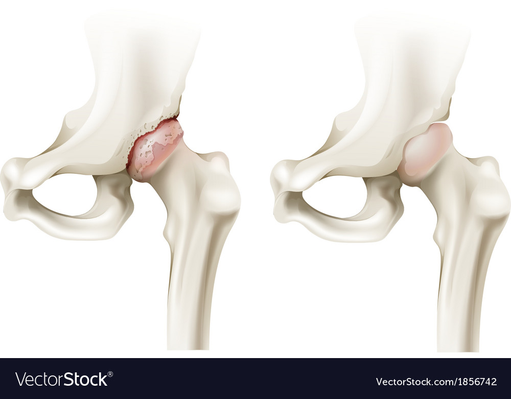 Hip arthritis vector | Price: 1 Credit (USD $1)