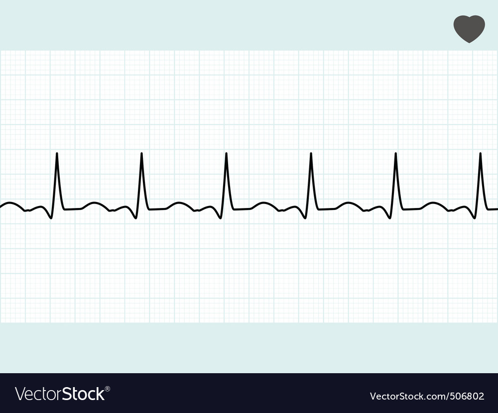 Normal electrocardiogram ecg eps 8 vector | Price: 1 Credit (USD $1)