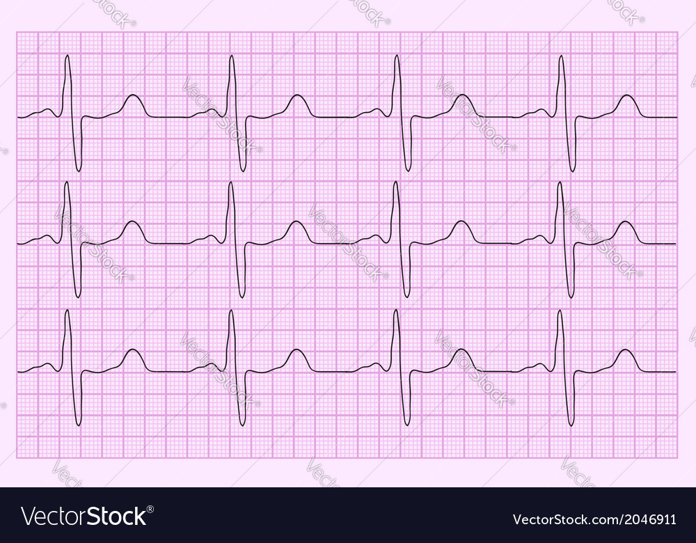 Heart analysis electrocardiogram graph ecg vector | Price: 1 Credit (USD $1)