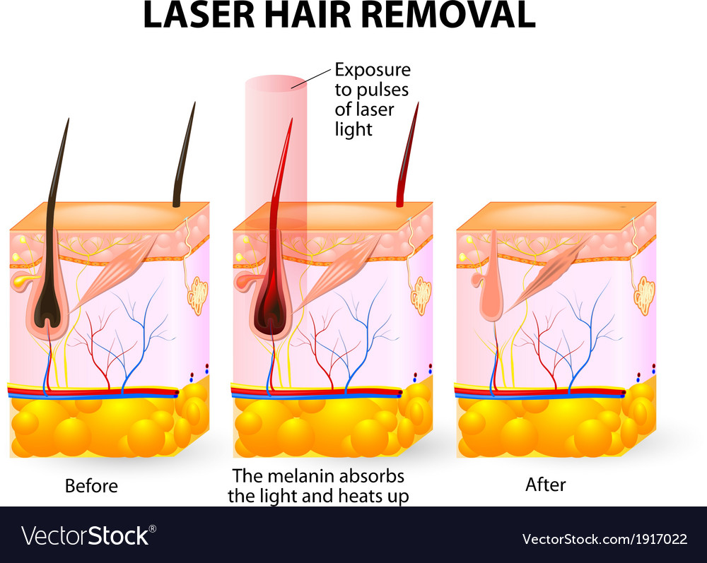 Laser hair removal vector | Price: 1 Credit (USD $1)