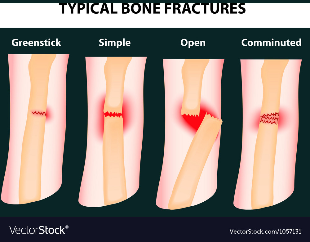Bone fractures vector | Price: 1 Credit (USD $1)