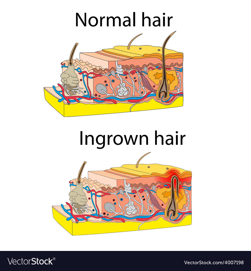 Ingrown and normal hair vector | Price: 1 Credit (USD $1)