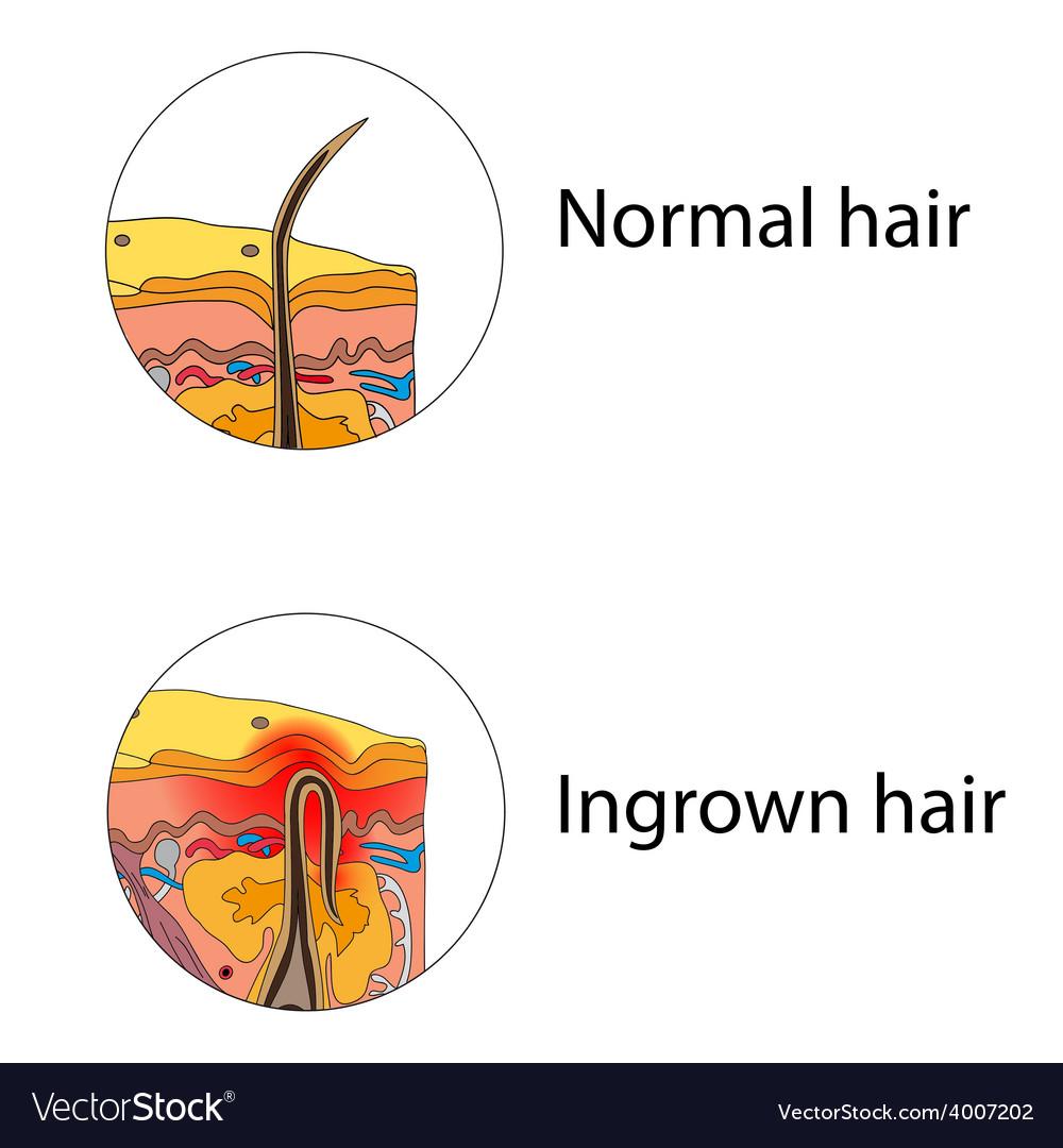 Ingrown hair vector | Price: 1 Credit (USD $1)