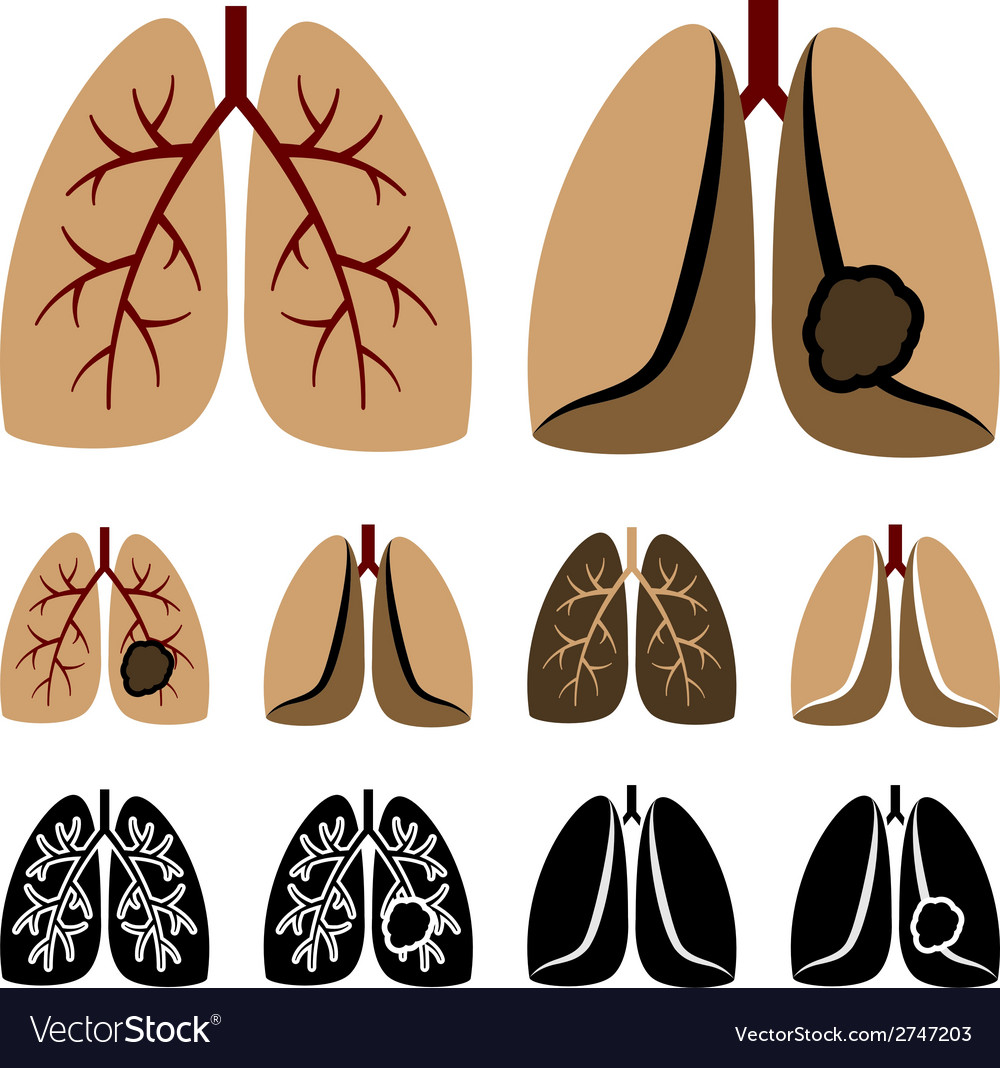 Human lung cancer icons vector | Price: 1 Credit (USD $1)