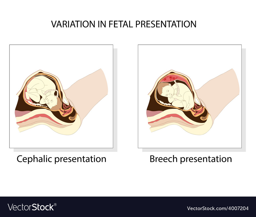 Variation in fetal presentation vector | Price: 1 Credit (USD $1)