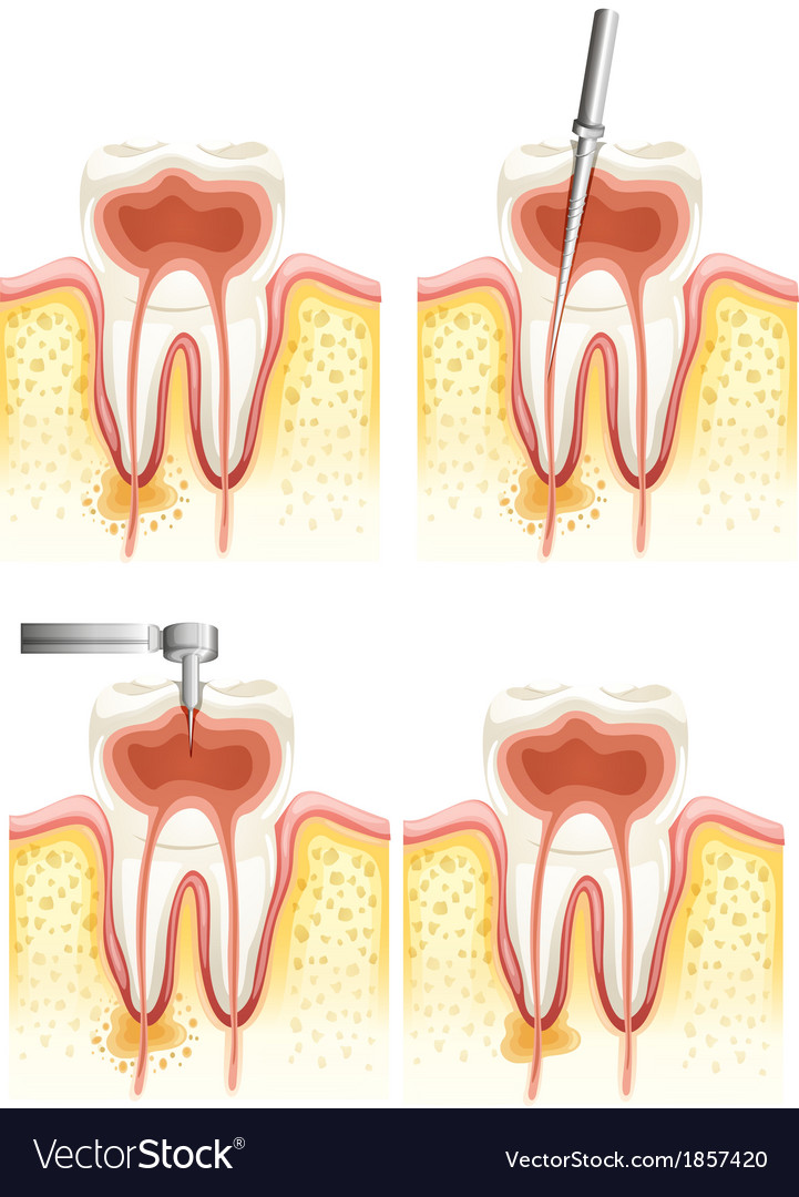 Dental root canal vector | Price: 1 Credit (USD $1)