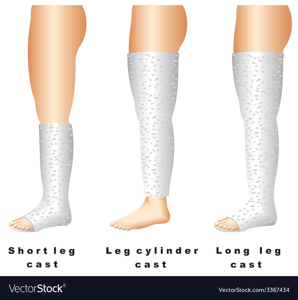 Leg casts vector | Price: 1 Credit (USD $1)