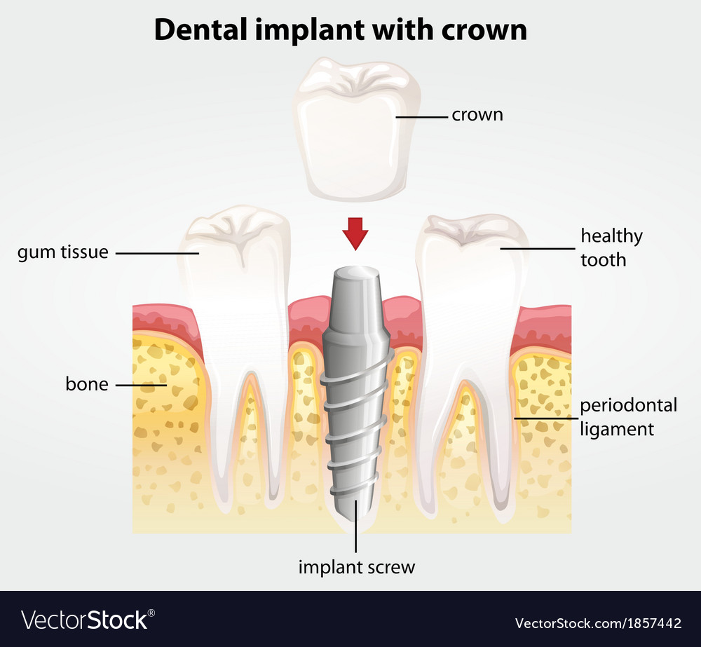 Dental implant with crown vector | Price: 1 Credit (USD $1)