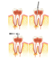 Dental root canal vector