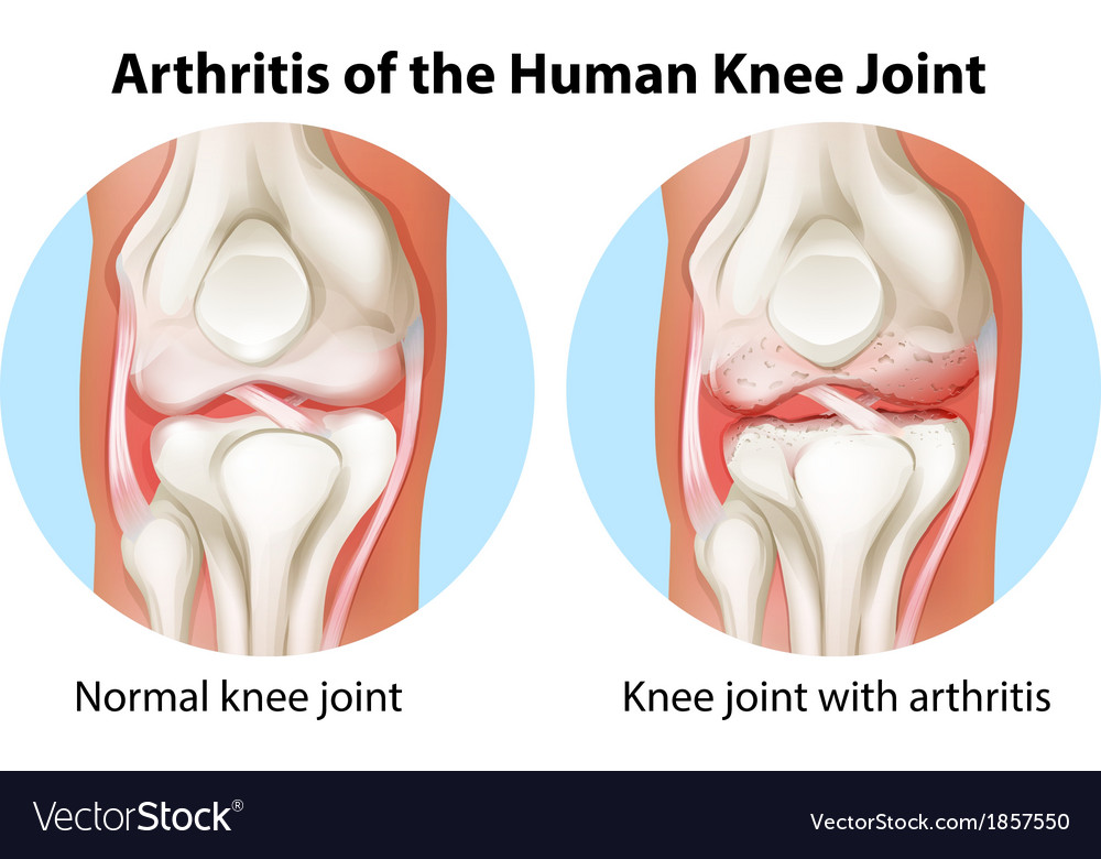 Arthritis of the human knee joint vector | Price: 1 Credit (USD $1)