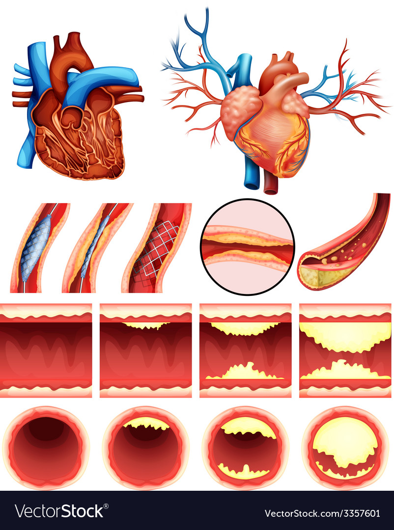 Heart cholesterol vector | Price: 3 Credit (USD $3)