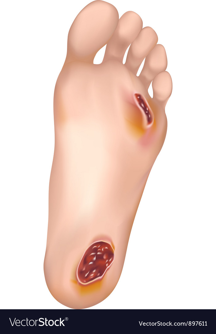 Diabetic foot vector | Price: 1 Credit (USD $1)