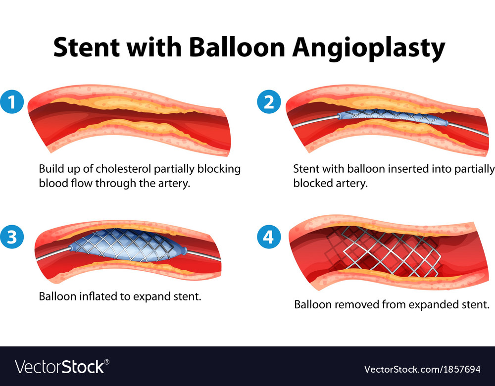 Stent angioplasty procedure vector | Price: 1 Credit (USD $1)