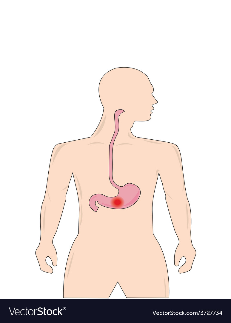 Peptic ulcer vector | Price: 1 Credit (USD $1)