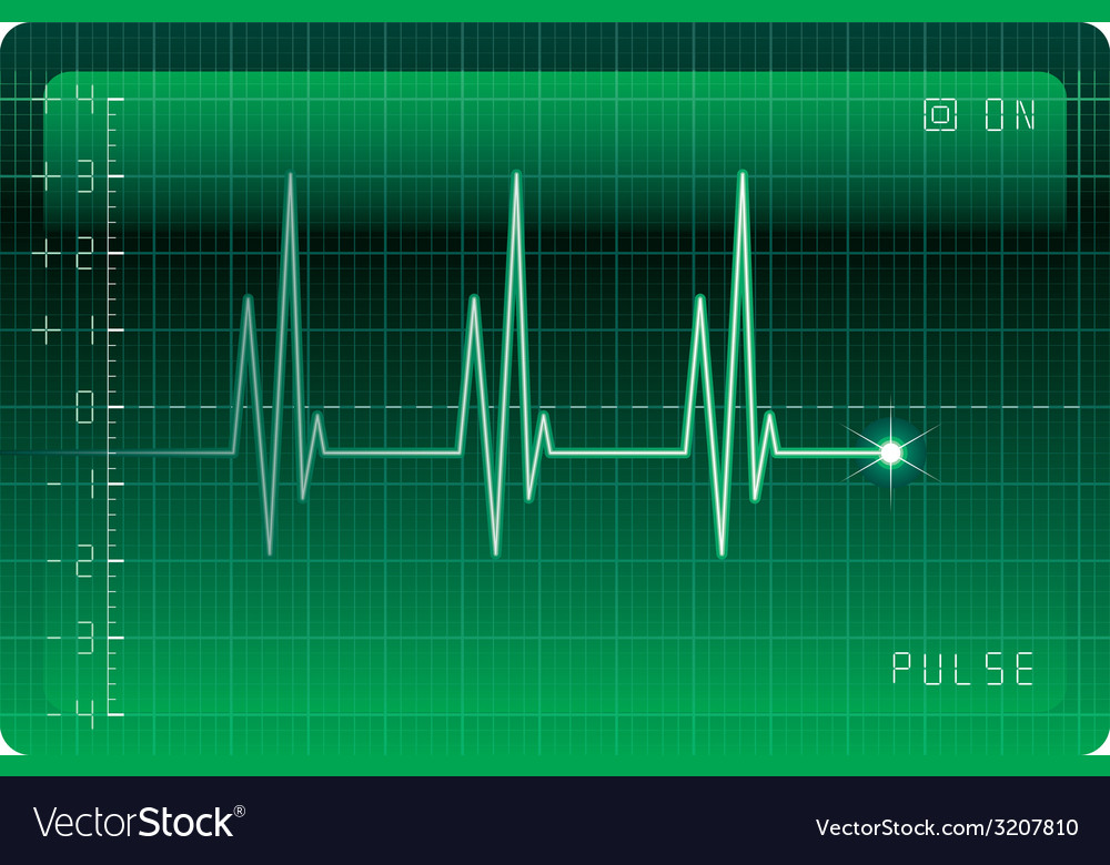 Ekg monitor vector | Price: 1 Credit (USD $1)