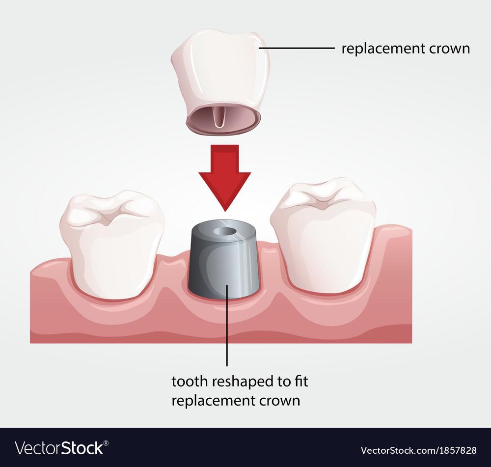 Dental crown procedure vector   Price: 1 Credit (USD $1)