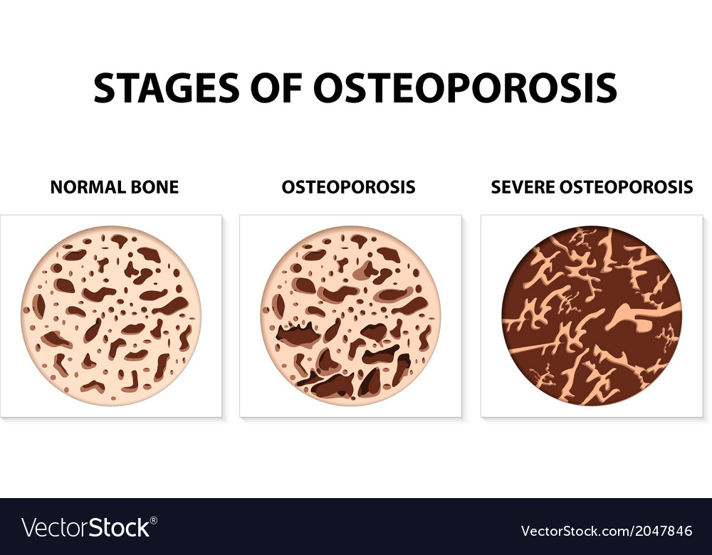 Osteoporosis vector | Price: 1 Credit (USD $1)