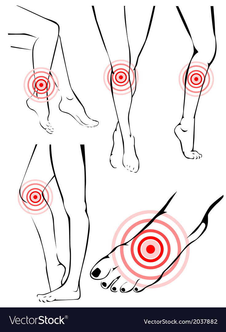 Legs pain vector   Price: 1 Credit (USD $1)