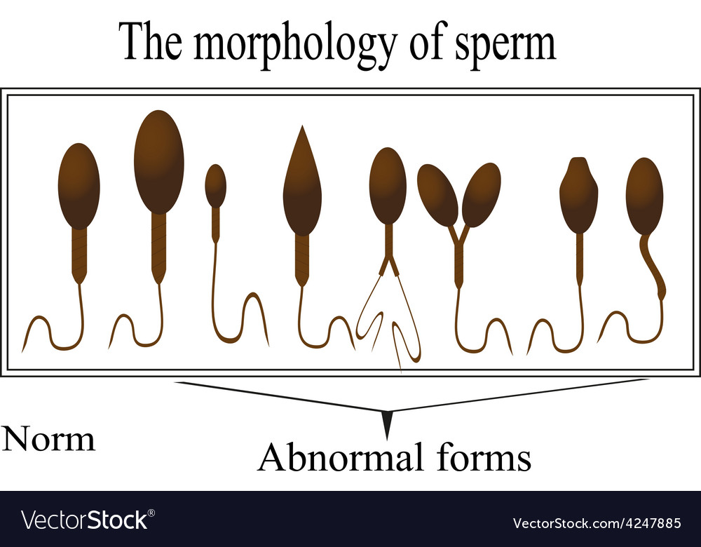 The morphology of the sperm normal and abnormal vector | Price: 1 Credit (USD $1)