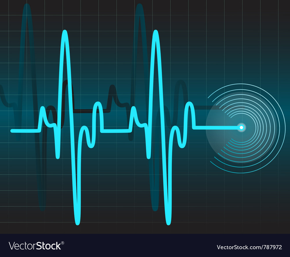 Electrocardiogram vector | Price: 1 Credit (USD $1)
