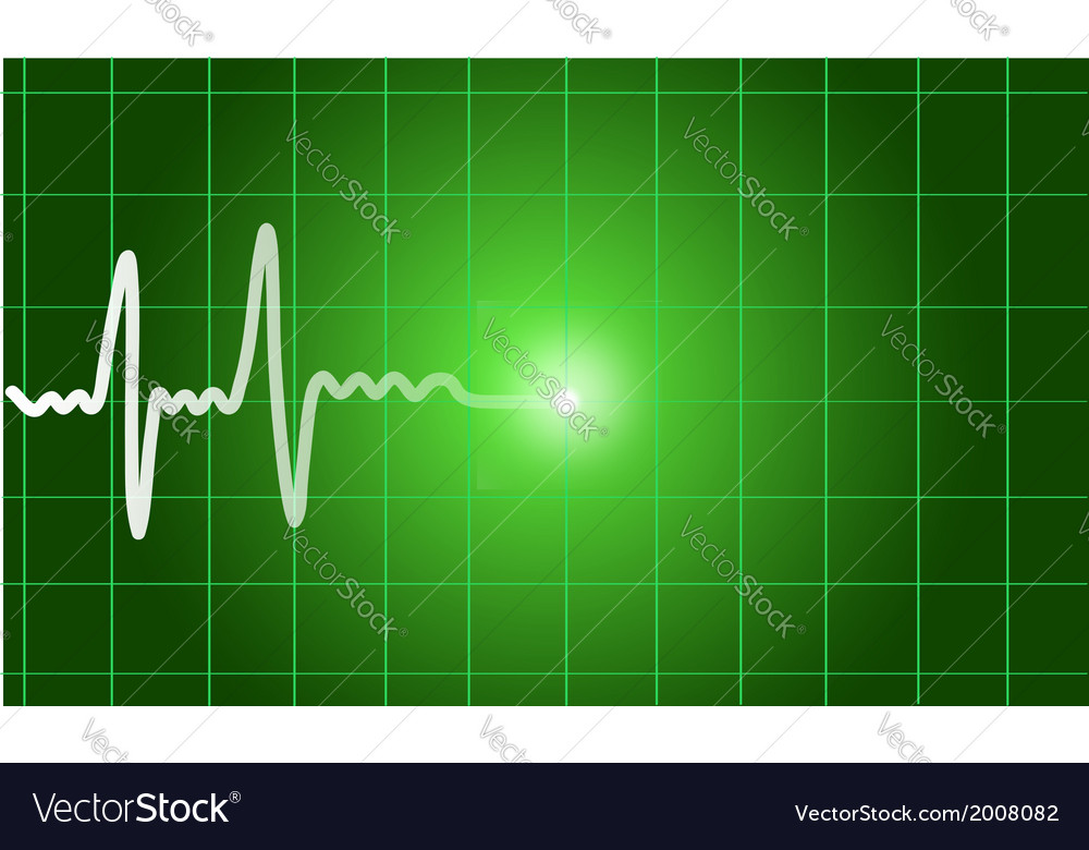 Green heart beat ekg graph vector | Price: 1 Credit (USD $1)