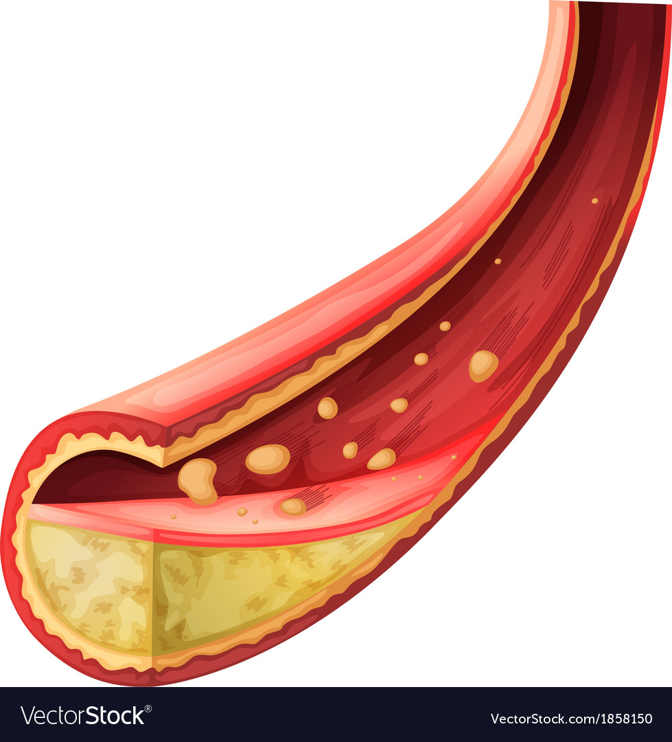 Artery blocked with cholesterol vector | Price: 1 Credit (USD $1)