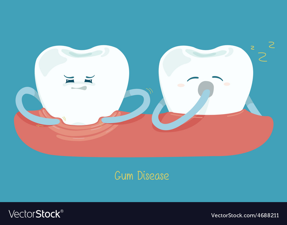 Gum disease vector | Price: 1 Credit (USD $1)