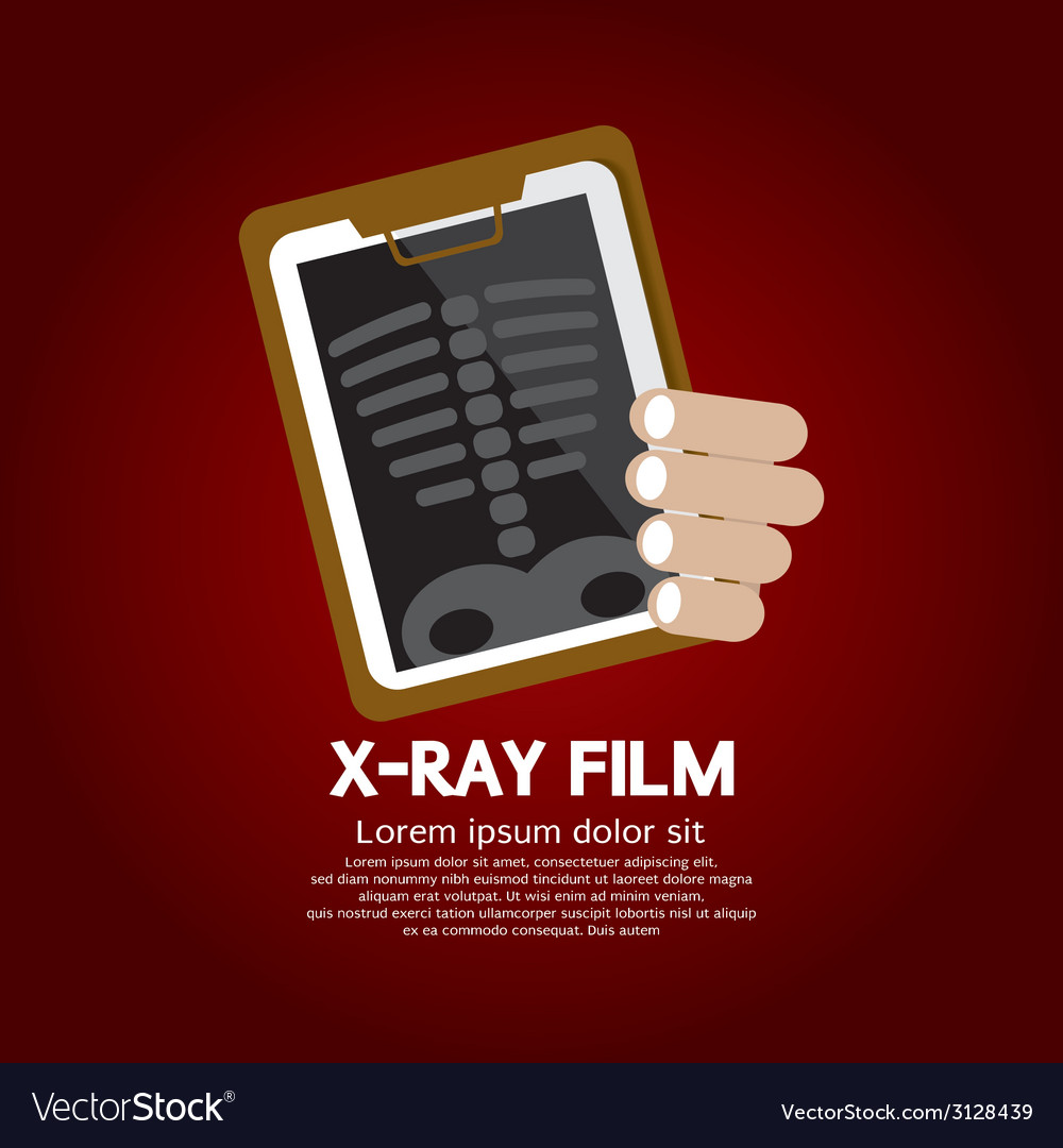 X-ray film vector | Price: 1 Credit (USD $1)
